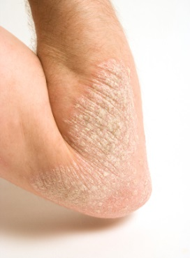 nm eczema1